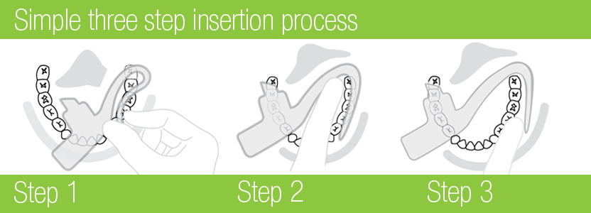 Mouthpiece Insertion